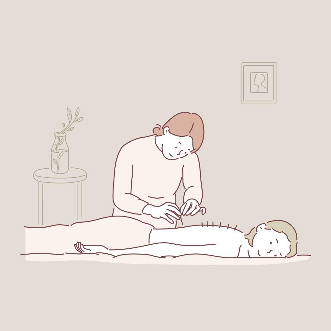 鍼灸を受ける女性
